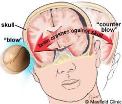 Picture of brain trauma